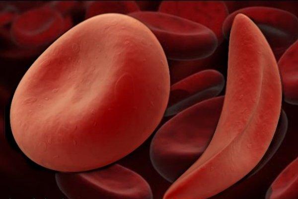 Серповидноклеточная анемия: причины, симптомы, диагностика, лечение