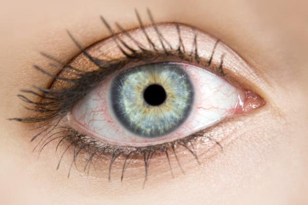 Глаза красные от линз