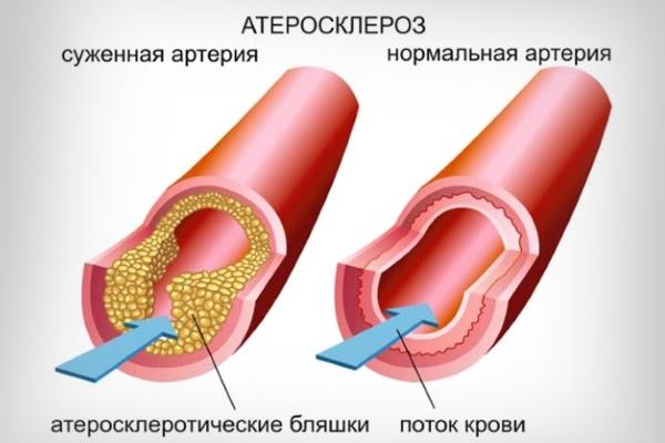 Картинки по запросу атеросклероз
